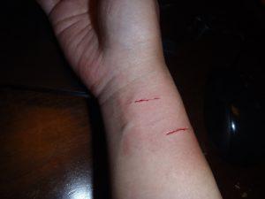 ネコ,咬傷